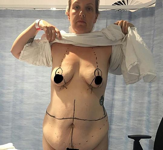 Po úbytku váhy ji trápila povislá kůže, již si nechala odstranit.