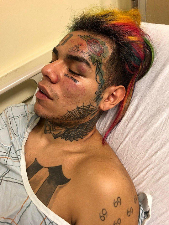 Tekashi69 skončil po brutálním útoku v nemocnici.