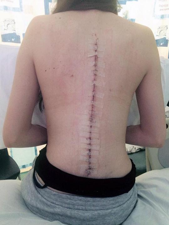 Amelie Kearney loni podstoupila operaci páteře.