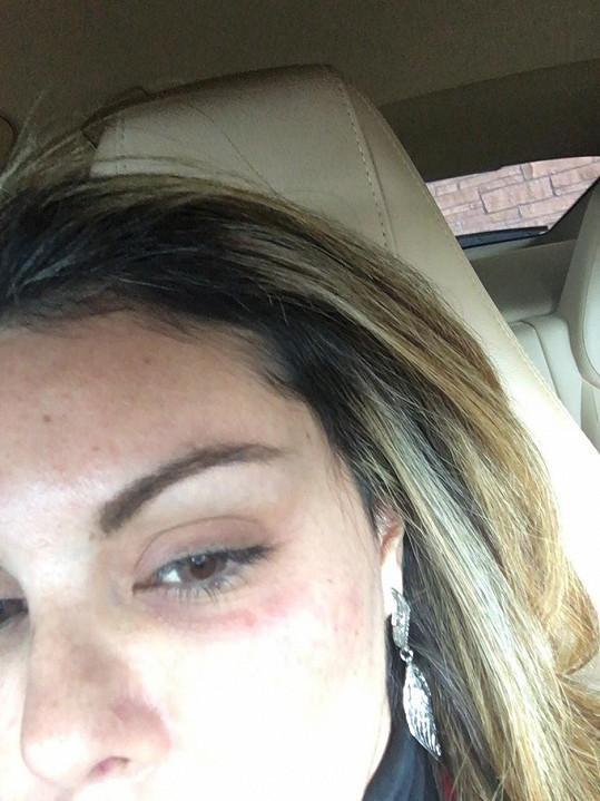 Liziane Gutierrez prý k monoklu přišla po útoku Chrise Browna.