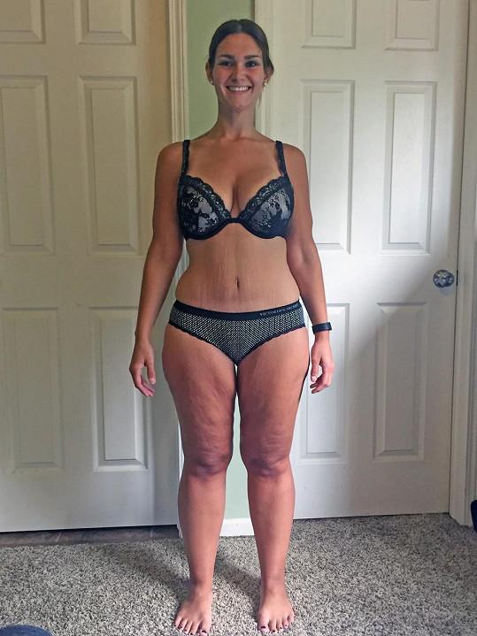 Po převislé, chirurgicky odstraněné kůži jí na břiše zůstala obří jizva.