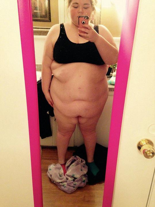 Takhle Nicole vypadala před operacemi žaludku.
