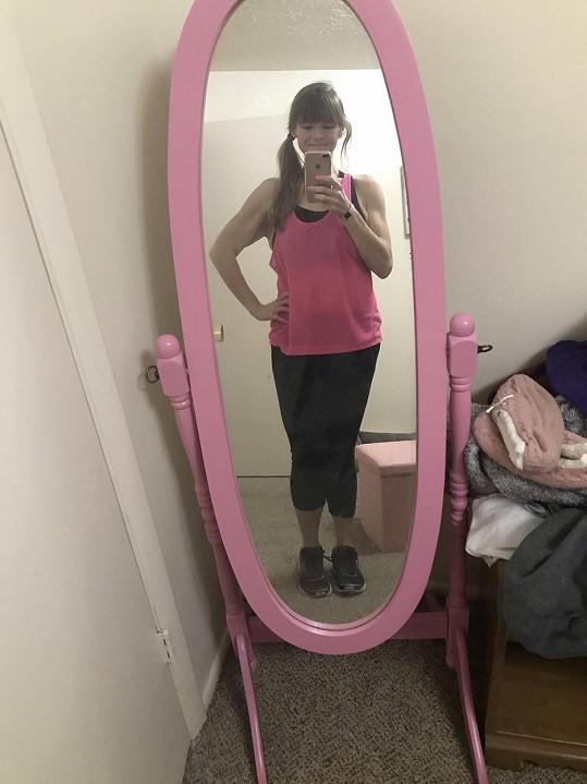 Po operaci žaludku a přísné dietě zhubla 125 kilo.