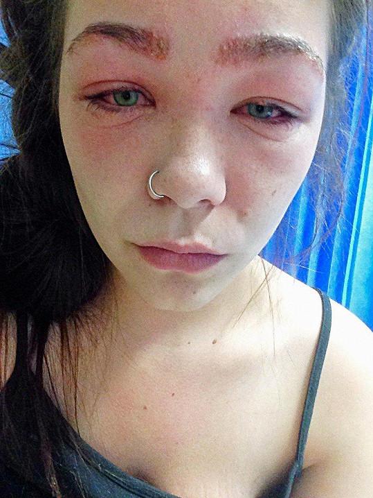 Alergie na barvu na vlasů umí způsobit pěkné nepříjemnosti (ilustrační foto).