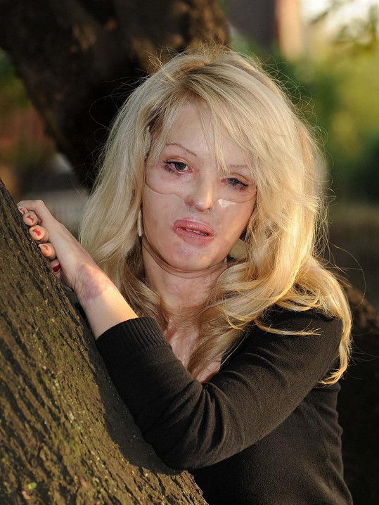 Piper rok po útoku kyselinou (2009)