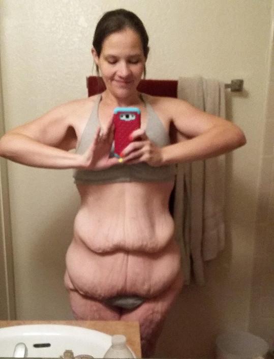 Po úbytku váhy jí zůstal kožní převis.