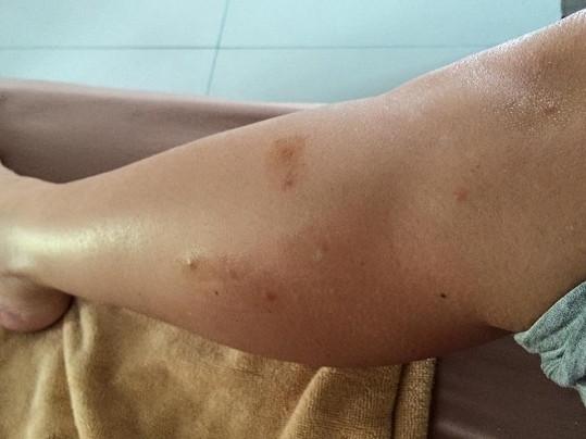 Míšu pokousaly v Thajsku štěnice.