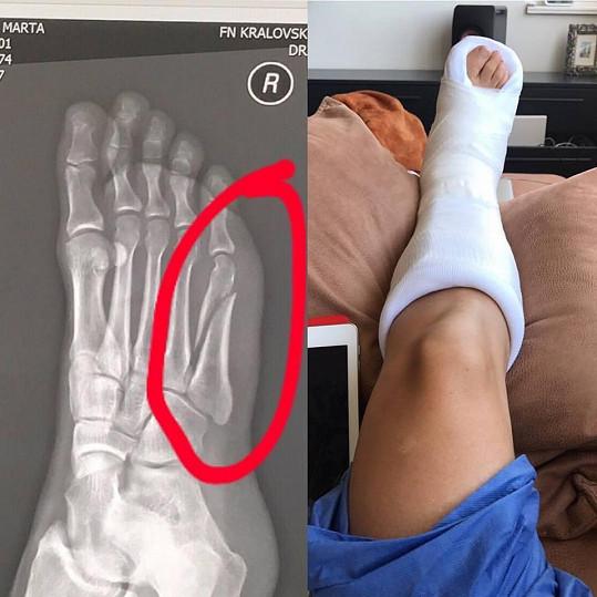 Marta Jandová měla v létě nohu v sádře.