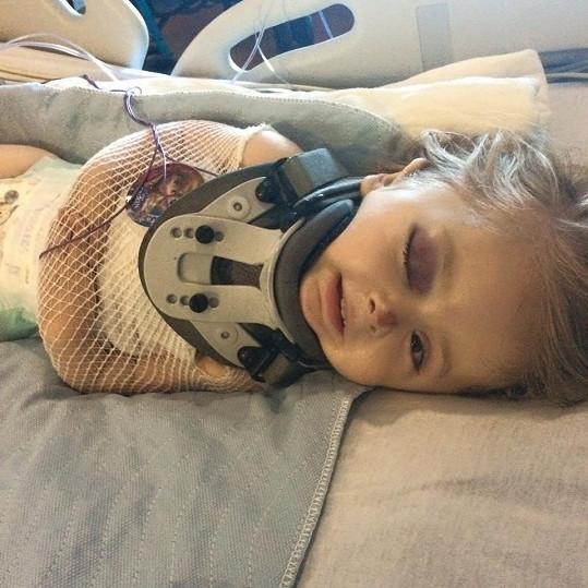 """První zlomeniny měla ještě v děloze matky. Při porodu se jí zlomila klíční kost a do svých prvních narozenin """"posbírala"""" neuvěřitelných 100 zlomenin."""