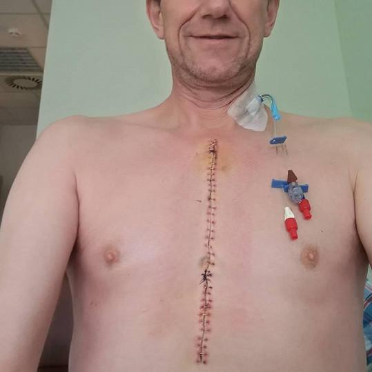 V květnu podstoupil náročnou operaci srdce.