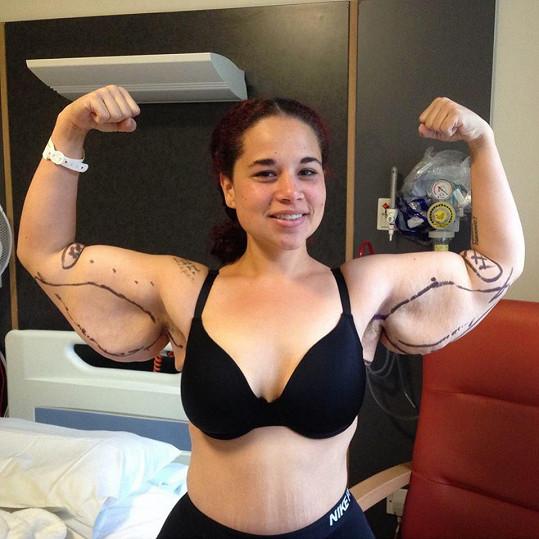 Rychlý váhový úbytek zanechal na jejím těle nežádoucí efekt - kožní vaky po nadměrně vytažené pokožce.