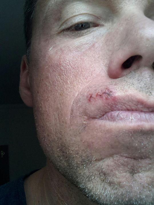 Zdeňka nešťastnou náhodou udeřil Martin Dejdar během zkoušky.