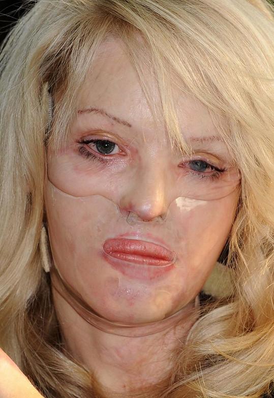 Katie podstoupila řadu plastických operací poté, co ji její žárlivý expřítel polil obličej kyselinou.
