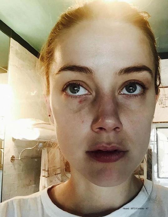 A Amber zase zveřejnila fotky s monoklem a poraněným rtem.