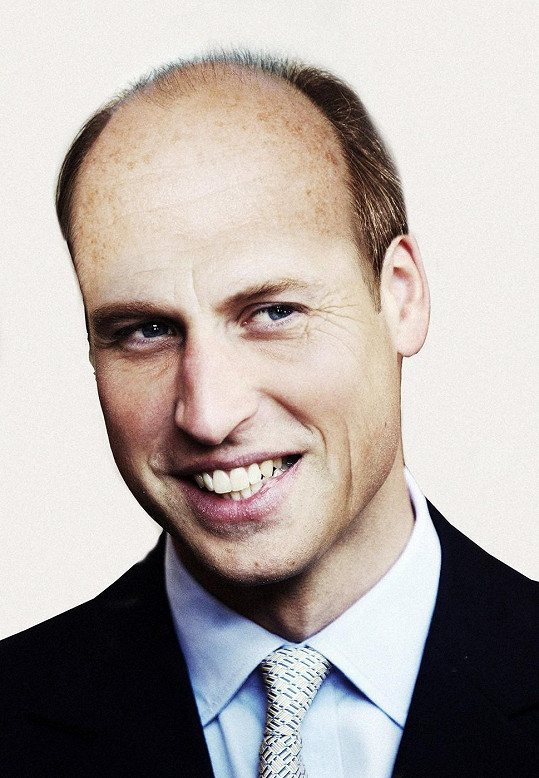 Princ William na tom s vlasovým porostem nebude v budoucnu nikterak slavně.