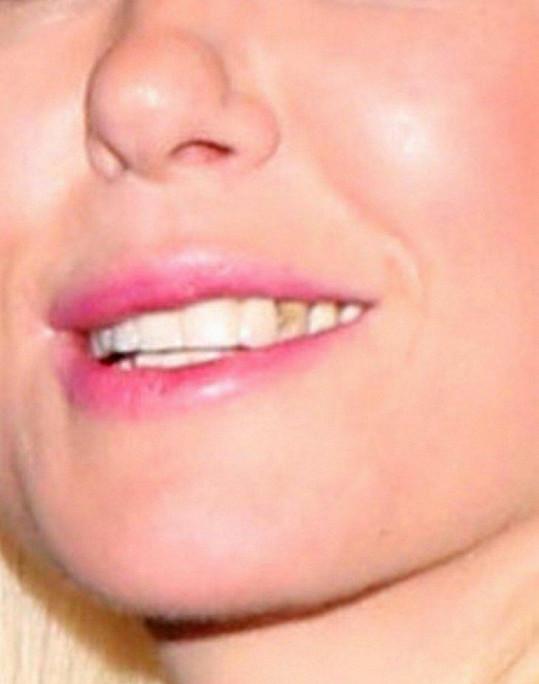 Nebo znáte nějakou jinou americkou hvězdu jejího formátu, která by byla na štíru se zubařem?