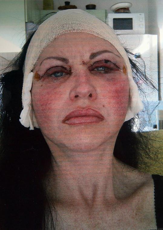 India Buchan po jednom ze zákroků - operace očních víček