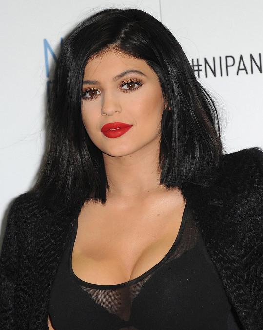 Kylie si pomocí injekcí nechala zvětšit rty.