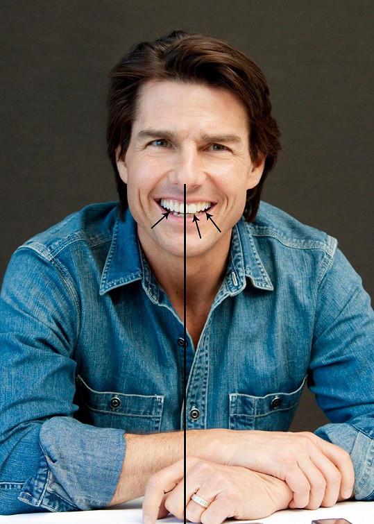 Herec má nalevo víc zubů.