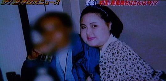 Po četných zákrocích se Korejce začal obličej zvětšovat.