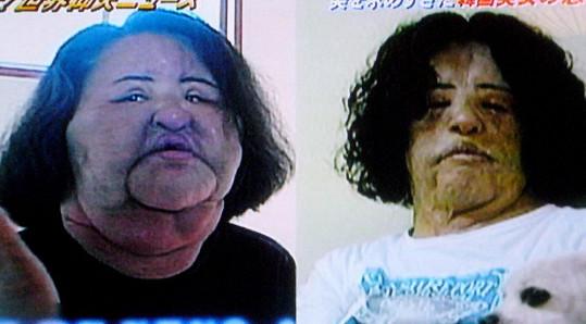 Aplikace oleje a silikonů ženě znetvořila obličej (vlevo). Ani po několika operacích se jí původní vzhled nevrací.
