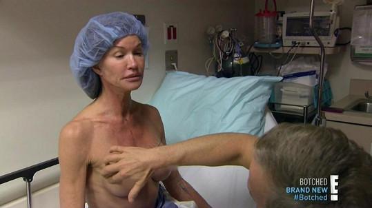 Plastický chirurg plánuje, kudy povedou řezy.