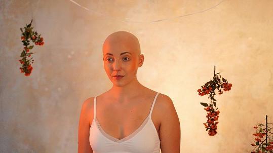Anička statečně bojuje s rakovinou.