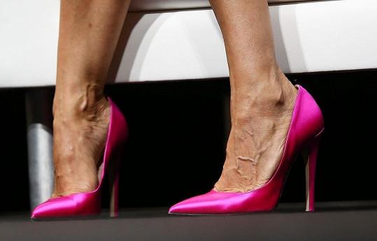 Na vysokých podpatcích dostaly její nohy pořádně zabrat.