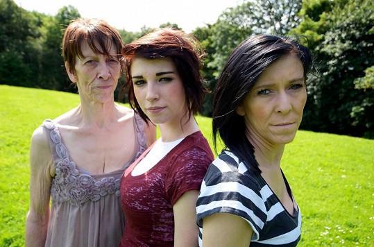 Zleva: Zařina maminka, sestra Chloe, kterou nemoc nepostihla a Zara před zákrokem.