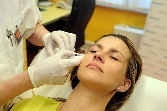 Monika Marešová si nechává píchat botox kolem očí.