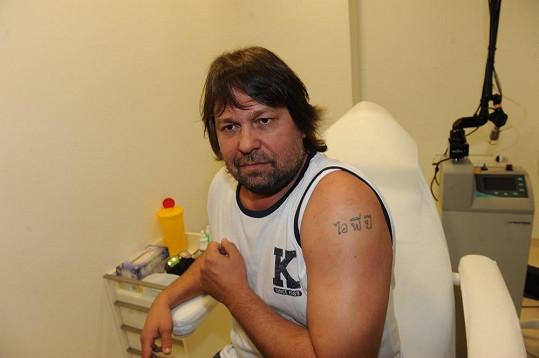 Jiří Pomeje ukazuje tetování, jehož se chce zbavit.
