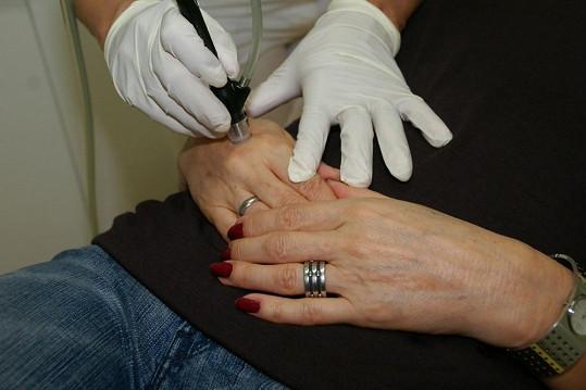 Omlazující proceduru dopřála Petra i svým rukám.