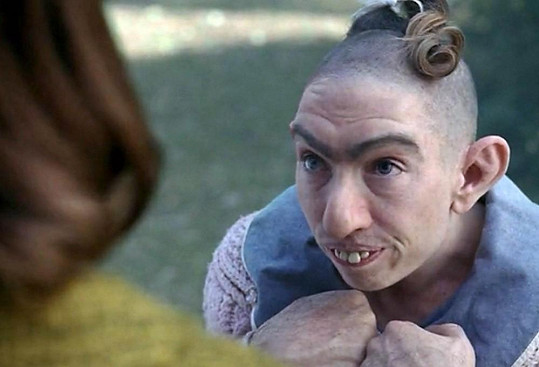 Naomi Grossman si kvůli roli musela nechat oholit hlavu.
