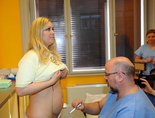 Plastický chirurg si kreslí, kde přesně bude odsávat.