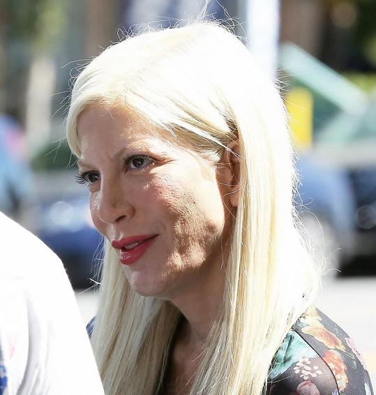 Ve 40 letech vypadá jako stařena.