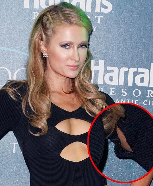 Paris Hilton ukázala natržený rukáv.