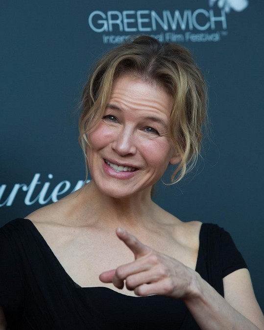 Renée Zellweger trpí rosaceou.