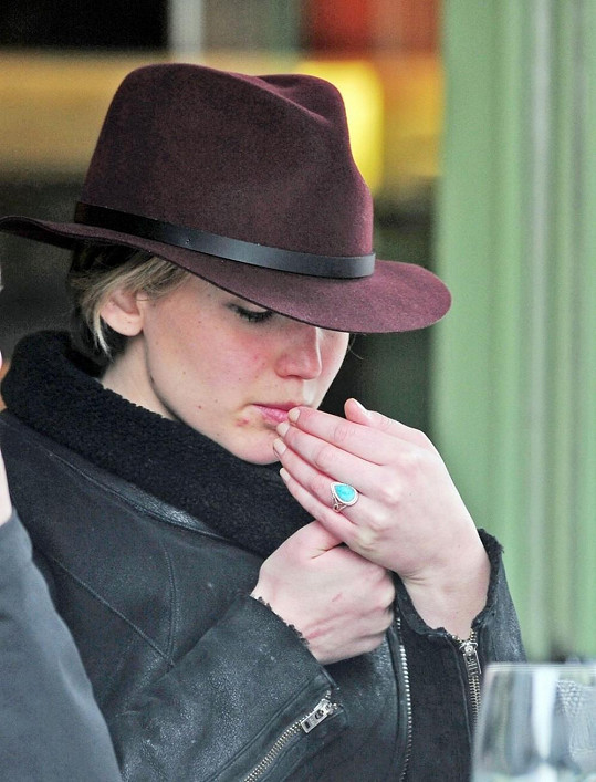 Jennifer Lawrence trápí kožní problémy.