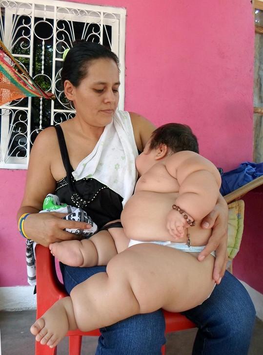 Obézní Santiago Mendoza s matkou Eunice Fandino
