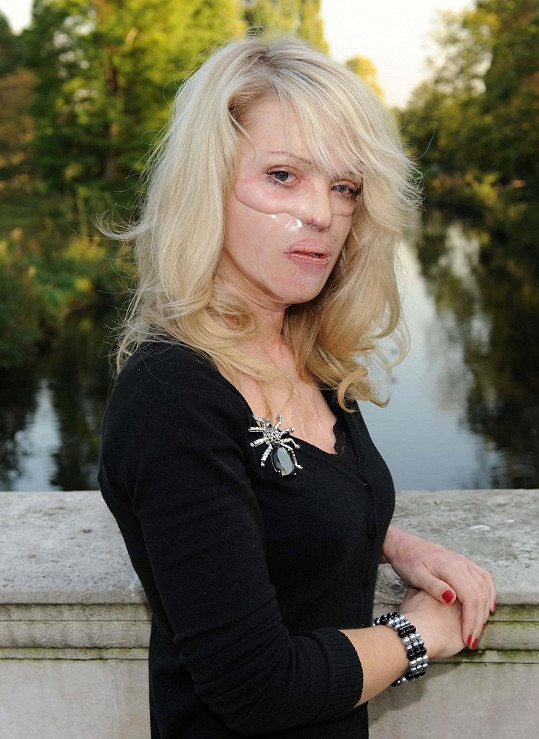 Katie Piper prodělala spoustu operací, aby se mohla co nejvíce přiblížit svému původnímu vzhledu.