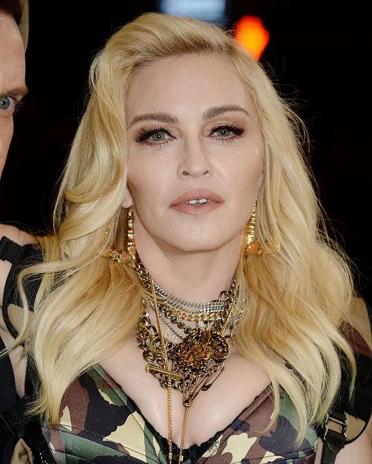 Madonna zjistila, že prodělala COVID-19, až po pozitivních testech na protilátky.
