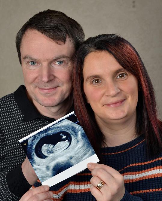Sue a Noel se pochlubili obrázkem z ultrazvuku.