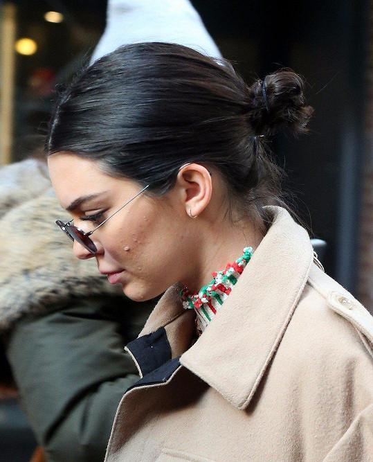 Také slavnou modelku Kendall Jenner trápí zánětlivé pupínky.