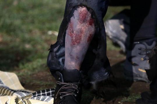 Zranění na noze je ale dílem maskérek.