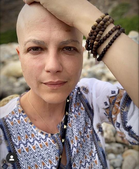 Po chemoterapiích přišla o vlasy, které jí už ale opět dorůstají.
