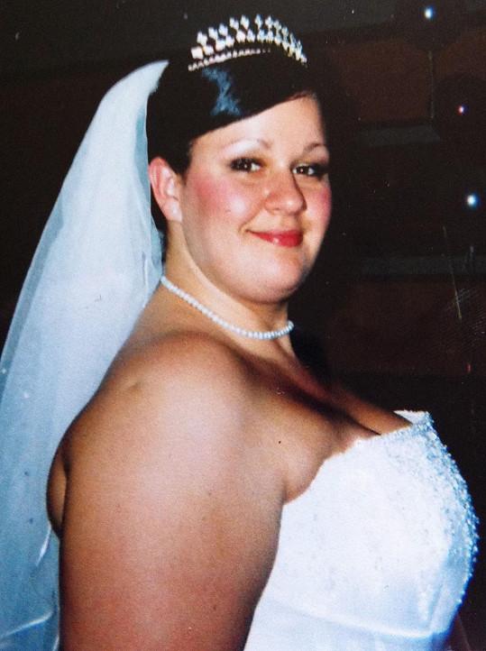 Obezita ji omezovala v mnoha činnostech.
