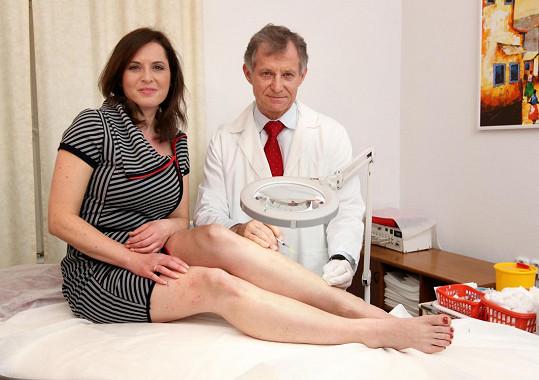 Primář žilní kliniky Ota Schütz nejprve Bářiny nohy prohlédl.