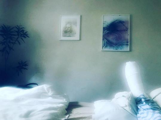 Ivana Jirešová teď leží doma s poraněnou nohou.