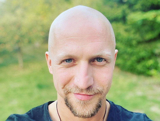 Tomáš Klus s holou hlavou