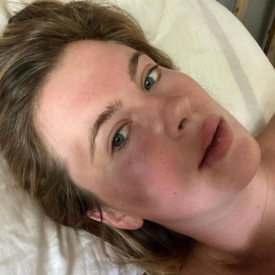Ireland Baldwin napadla zdrogovaná žena. Modelka sdílela fotku pomláceného obličeje.
